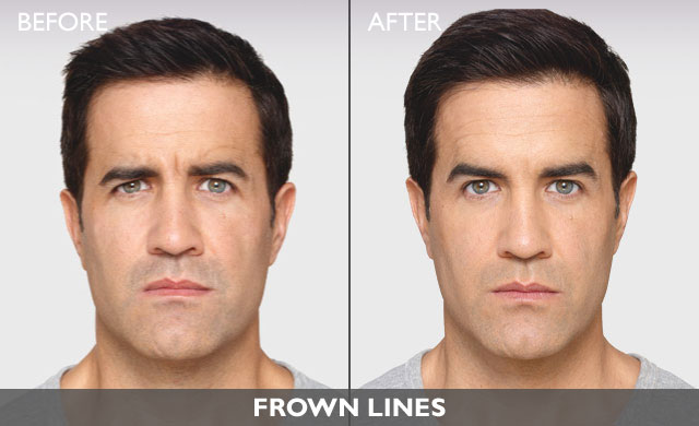 Botox For Men In Fair Lawn, NJ